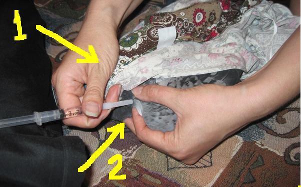 Женщина делает укол голубю